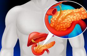 Билиарный панкреатит: что это такое, виды, признаки