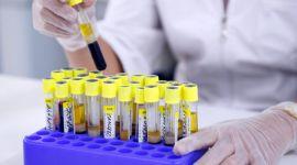 Анализы на гепатит А, В, С, D, Е, F, G: расшифровка