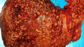 Цирроз печени: признаки, классификация, стадии, фото