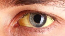 Механическая желтуха (механический гепатит): причины, лечение, прогноз