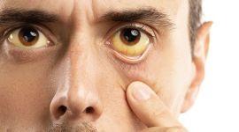 Желтуха: заразная или нет, признаки, лечение