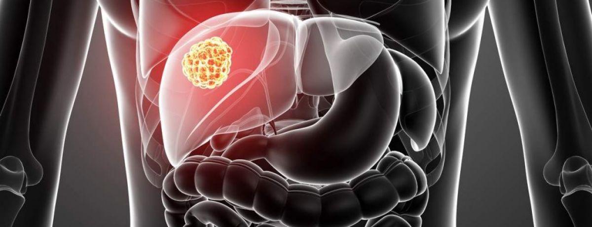 Гепатит A: болезнь Боткина
