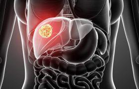Гепатит A: что это такое, признаки, лечение, инкубационный период