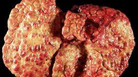Классификация цирроза печени по Чайлд-Пью
