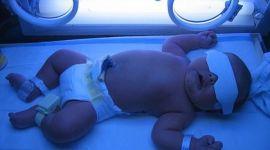 Лечение желтушки у новорожденных под УФ лампой