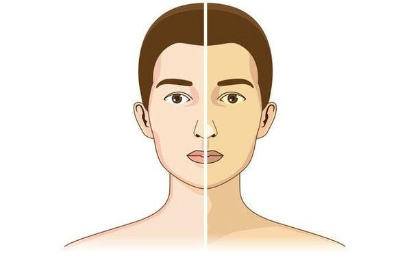 Синдром Жильбера: понятие, причины, признаки, как выявить, лечение