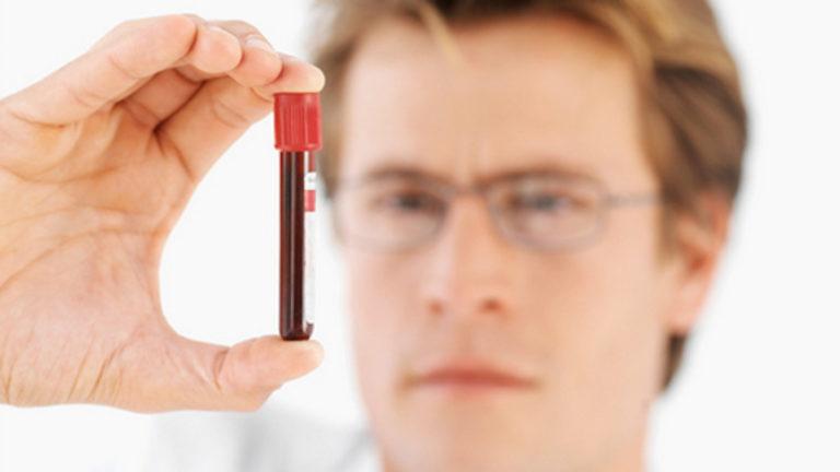Диагностика гепатита С у мужчин