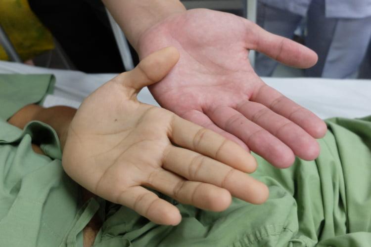Как проявляется гепатит у женщин