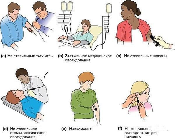 Как женщина может заразиться гепатитом