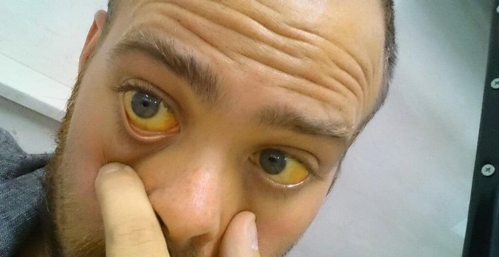 Причины возникновения печеночной желтухи