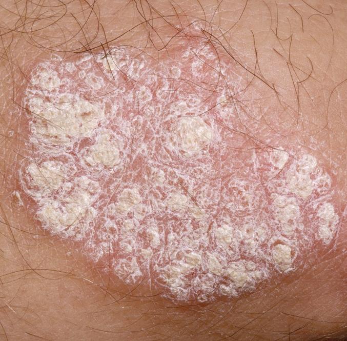 Симптомы гепатита C у женщин