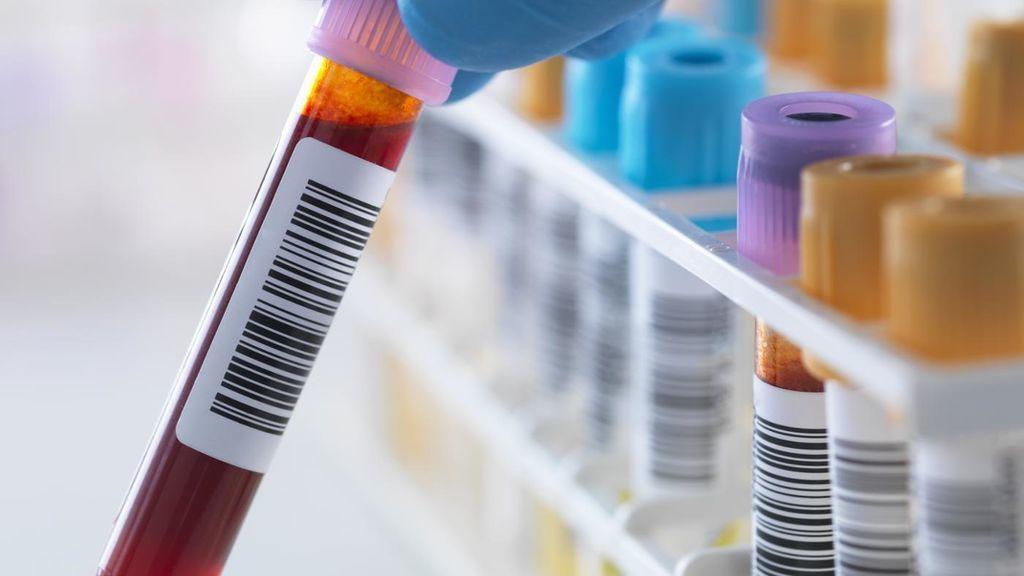 Анализы на гепатит D