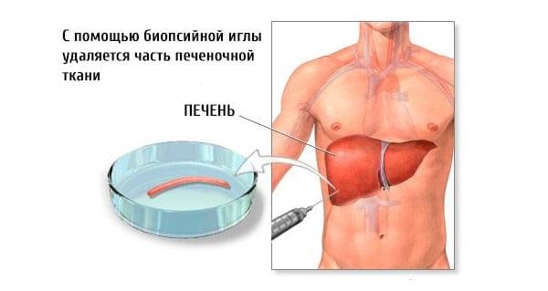 Для чего делается биопсия печени