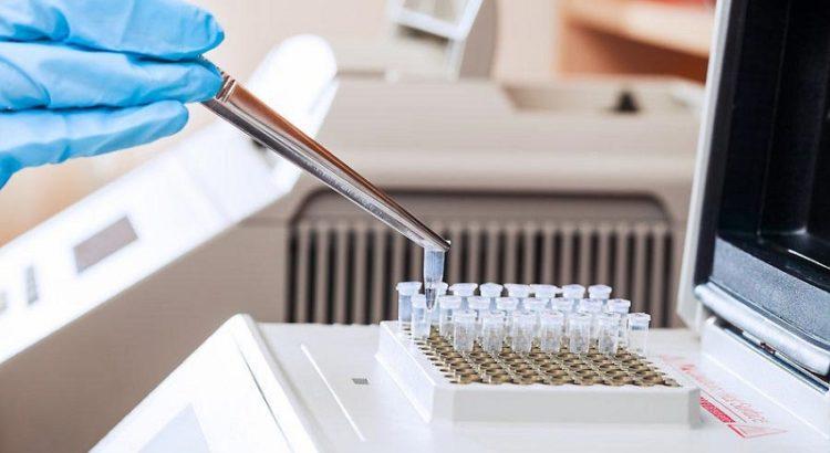 Ложноположительный результат анализа на гепатит С как может получиться