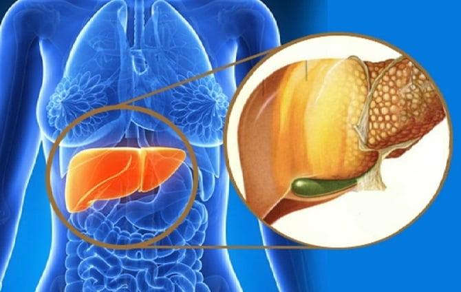 Народные средства от цирроза печени