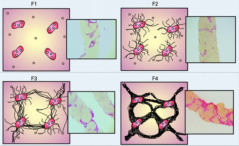 Определение стадии истепени хронического гепатита Б