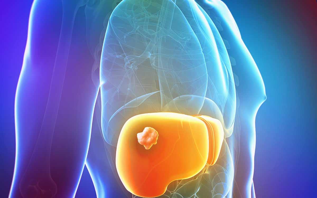 Осложнения хронического гепатита В
