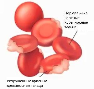 Лечение билирубина народными средствами thumbnail