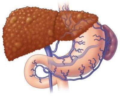 Причины печеночной энцефалопатии