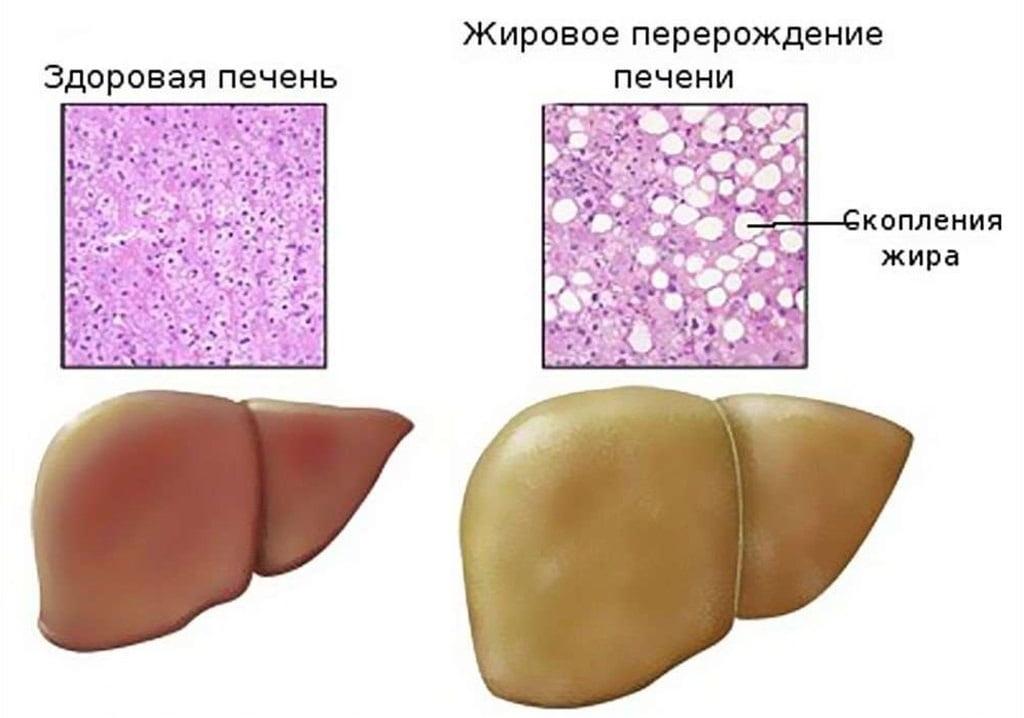 Причины возникновения гепатомегалии