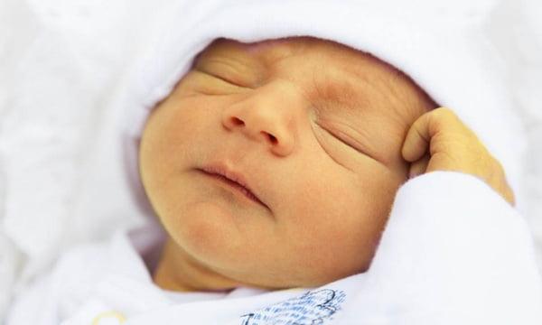 Признаки физиологической желтухи новорожденного