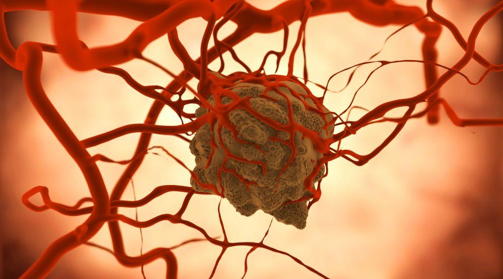 Рак печени у человека