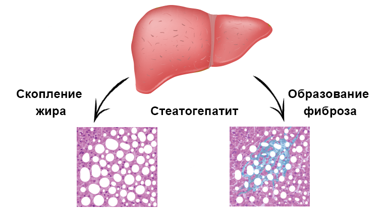 Стеатогепатит