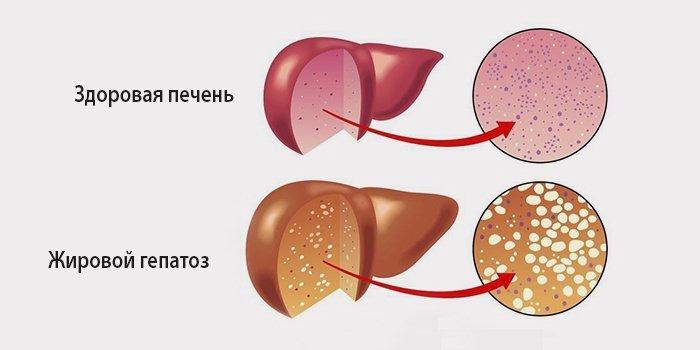 Степени жирового гепатоза
