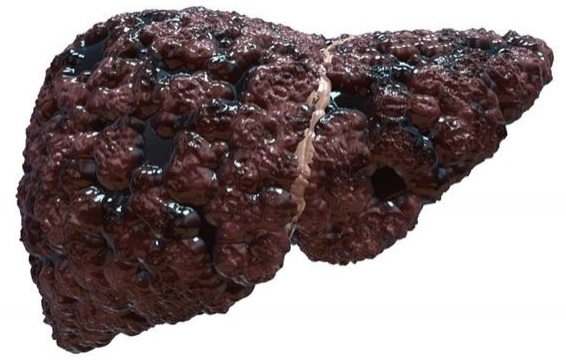 Цирроз печени при хроническом гепатите Б