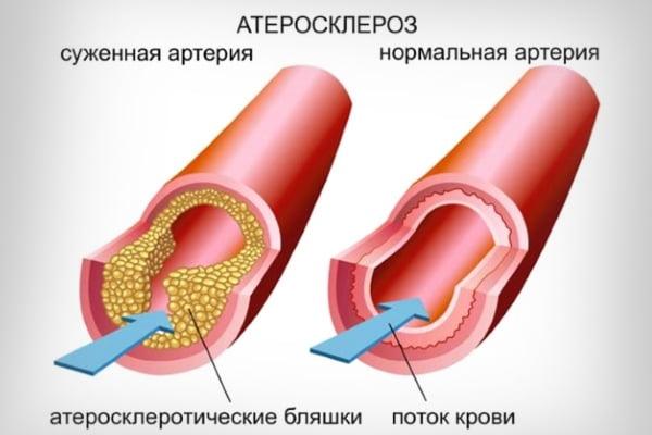 Тыквеол для лечения атеросклероза