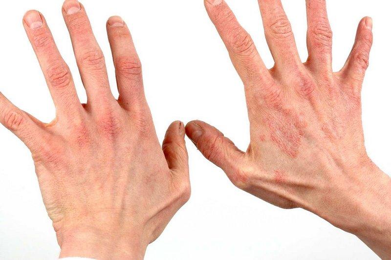 Тыквеол для лечения кожных болезней