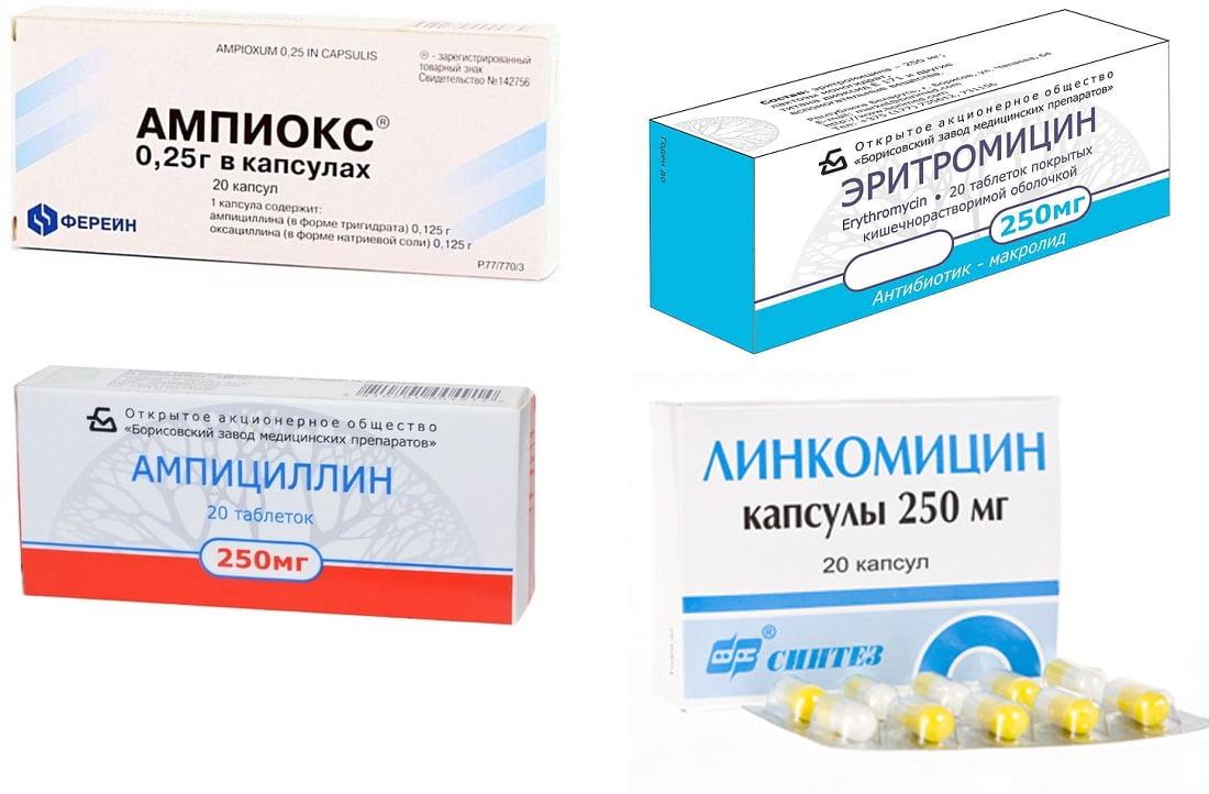 Антибиотики при калькулезном холецистите
