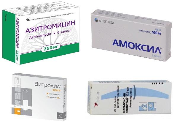 Антибиотики при воспалении желчного пузыря