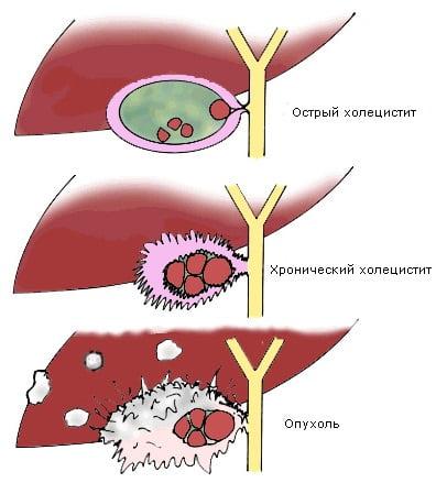 Что такое хронический холецистит