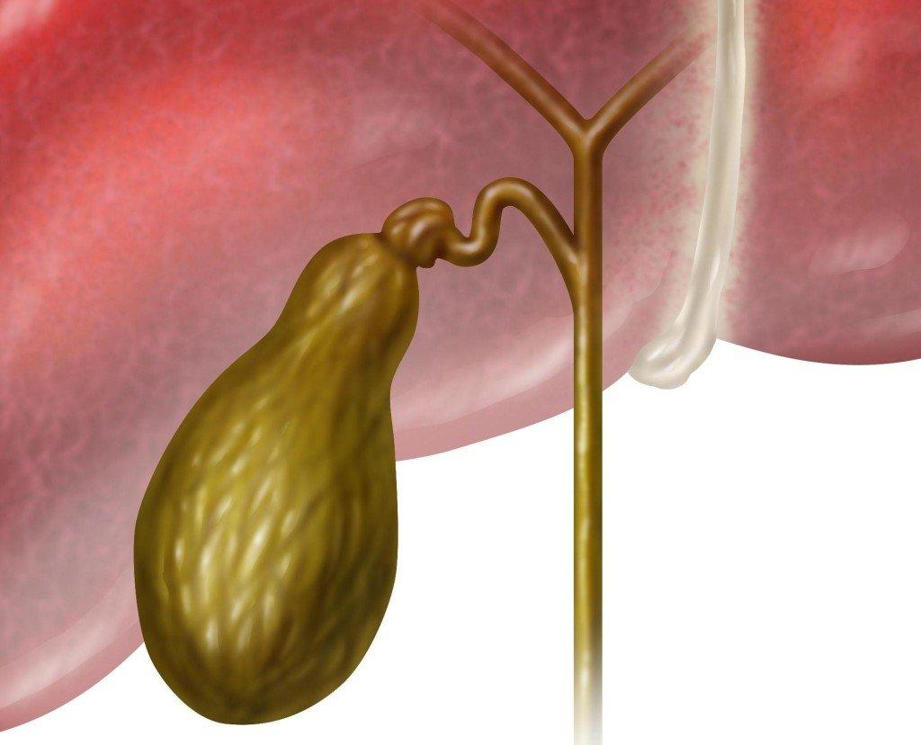 Что такое калькулезный холецистит