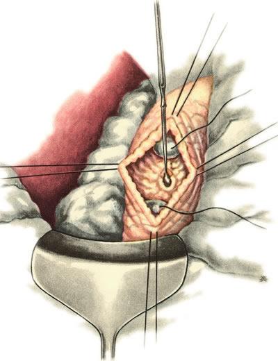 Холедохотомия для удаления камней из елчных протоков