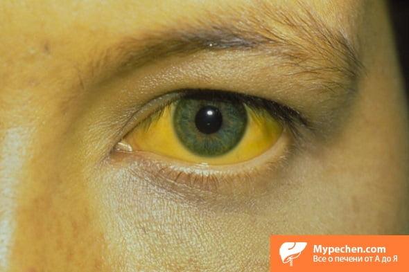 Инфекционный гепатит