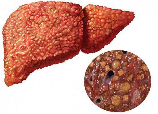 Как жить с печеночной недостаточностью при гепатите В