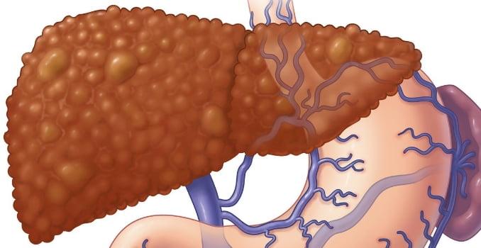 Пересадка печени: сколько живут после трансплантации, подготовка к операции