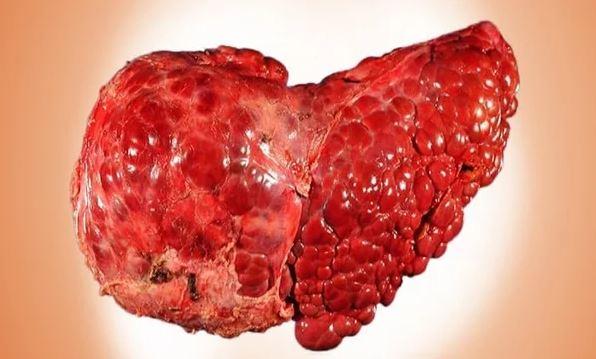 НАЖБП в стадии цирроза