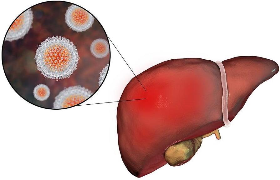 Носительство гепатита В
