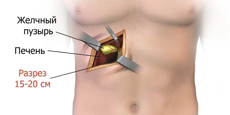 Операция для удаления камней из желчного пузыря