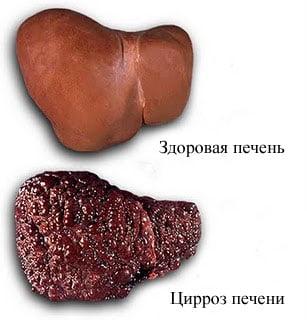 Осложнения гепатита В