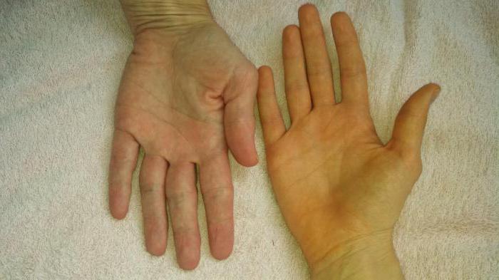 Причины повышенного билирубина