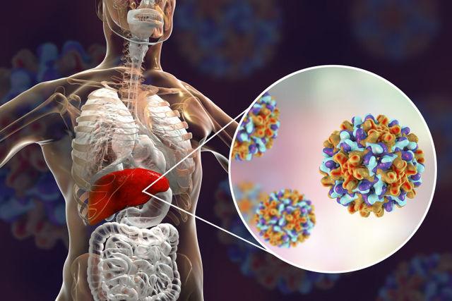 Сколько живут с гепатитом B