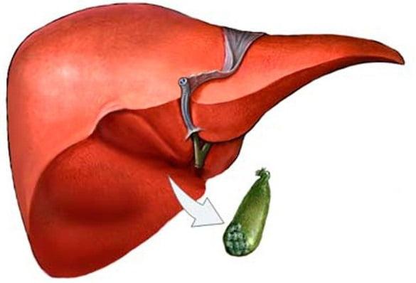 Удаление желчного пузыря при полипах